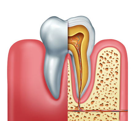 Image result for root canal""